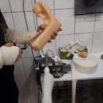 W pracowni ortopedycznej