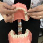 Nauka zakładania pasków z formówką na zęby boczne na kierunku higienistka stomatologiczna w Kościerzynie