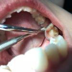 Kierunek higienistka stomatologiczna w Kościerzynie wykonywanie przeglądów stomatologicznych