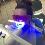 higienistka-stomatologiczna-szkolenie-praktyczne-wybielania-zebow-3