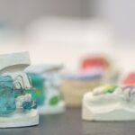 sala-1-pracownia-protetyki-dentystycznej-spmis-lodz-10
